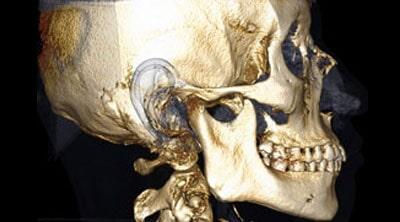 CENTRO DE RADIOLOGIA MAXILOFACIAL Y DIAGNOSTICO DENTAL - Radiologia digital 3D