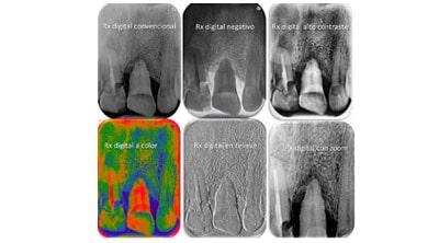 CENTRO DE RADIOLOGIA MAXILOFACIAL Y DIAGNOSTICO DENTAL - Tomografia dental 3D