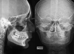 CLÍNICA ODONTOLÓGICA LÁSER VERBOONEN - Radiografías dentales