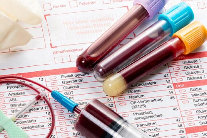 CLÍNICA DE DIAGNÓSTICO MODERNO - Pruebas de VIH