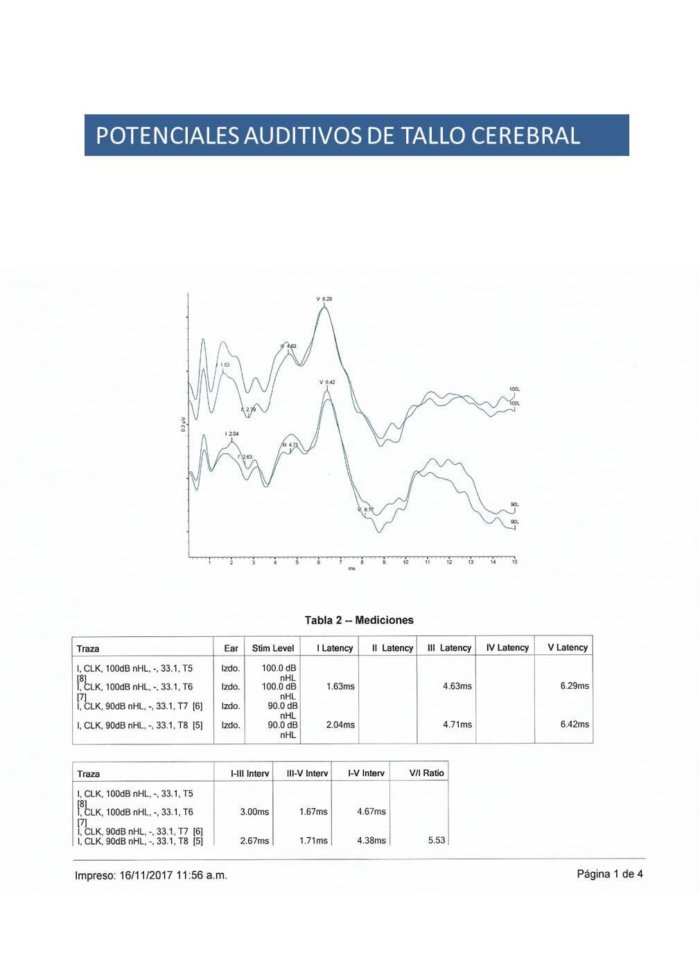 CENTRO DE DIAGNOSTICO AUDIOLOGICO Y OTONEUROLOGICO DE TUXTLA SA DE CV - Potenciales auditivos