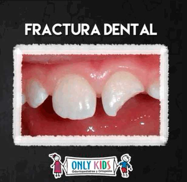 ONLY KIDS-fractura dental