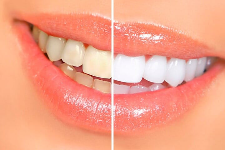 THE PERFECT SMILE DENTAL LASER CLINIC - blanqueamiento dental