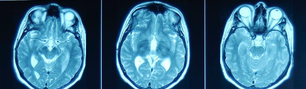 DR. ABEL AGUILAR ORTEGA Electroencefalograma