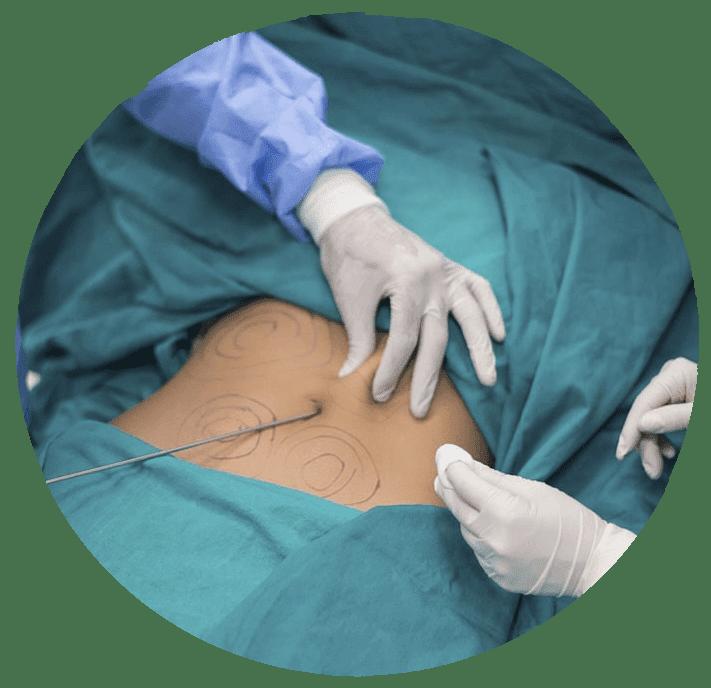 CLÍNICA CER - Liposucción láser