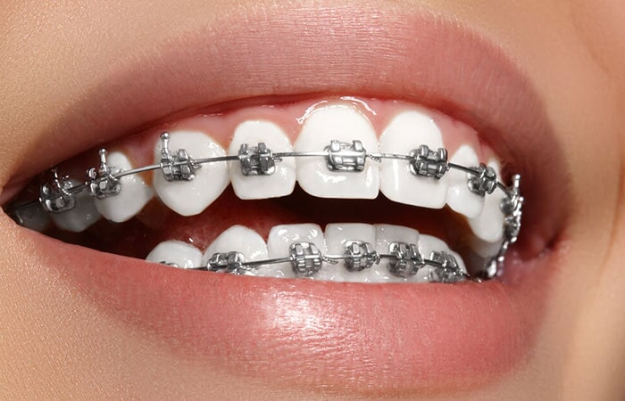 SMILE DENTAL SALTILLO - Brackets