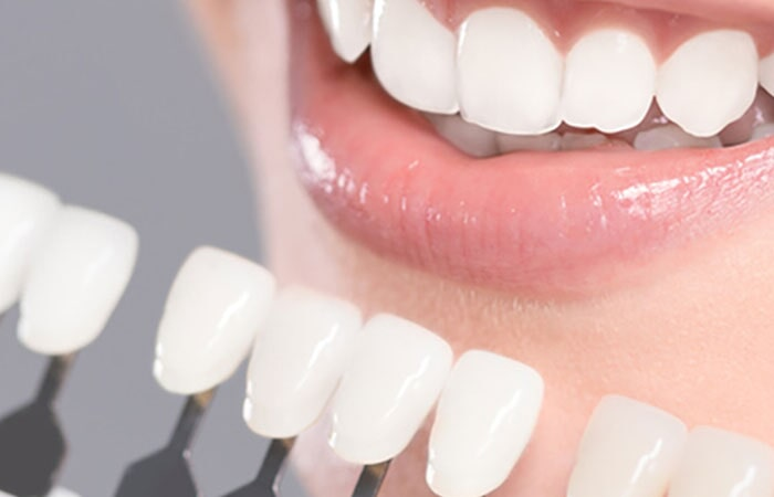 SMILE DENTAL SALTILLO - Implantes y prótesis dentales