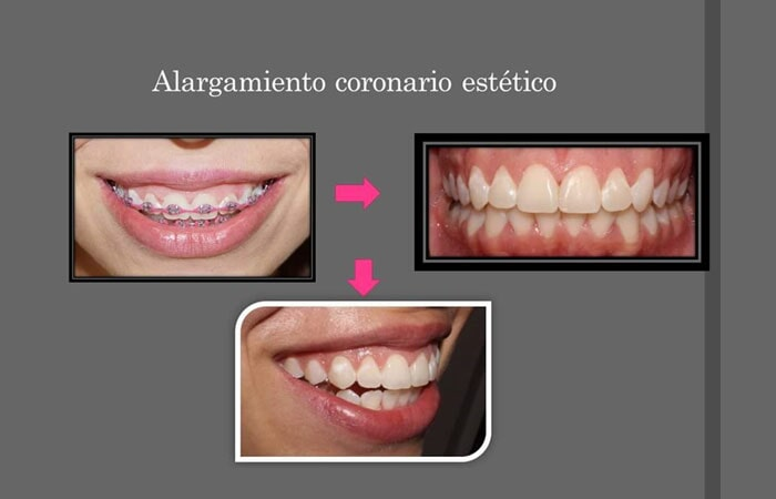 SMILE DENTAL SALTILLO - Blanqueamiento dental