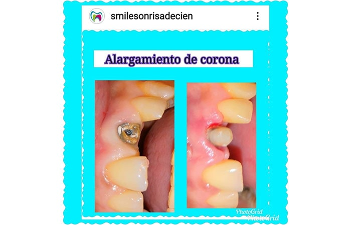 SMILE DENTAL SALTILLO - Endodoncia (dolor agudo)