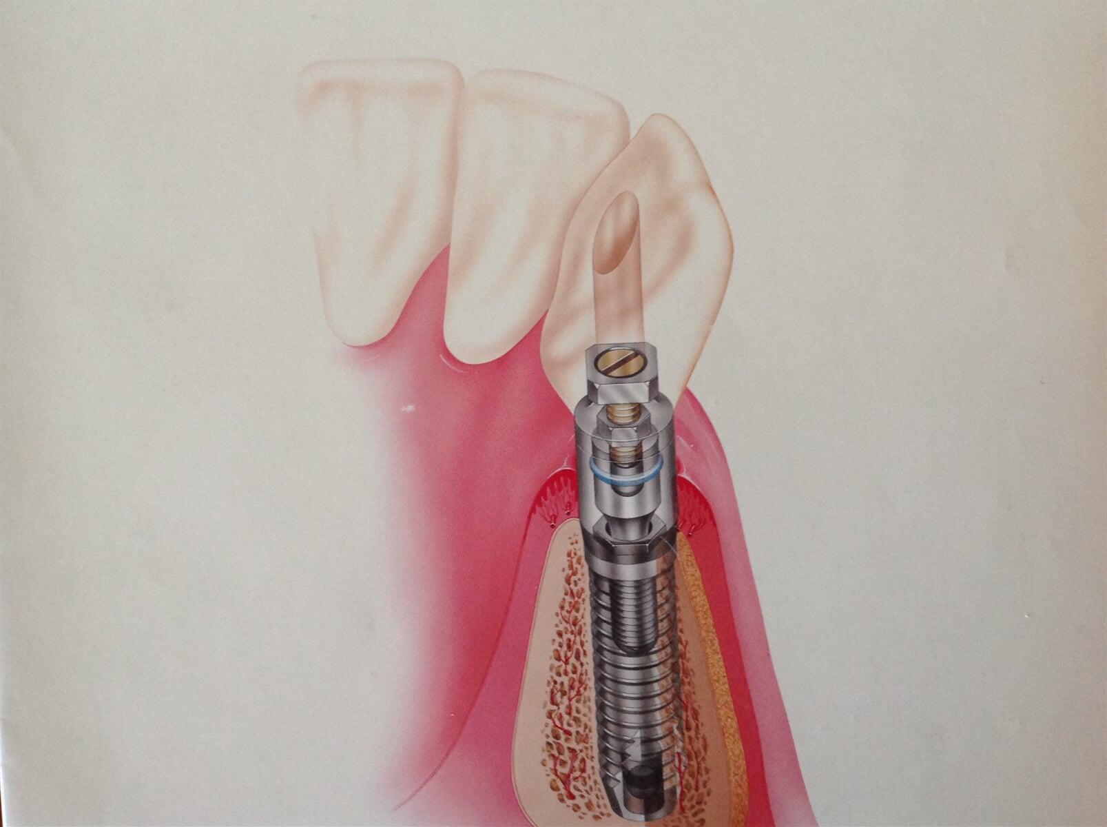 DRA BEATRIZ MIRELES ESTENS-implantes