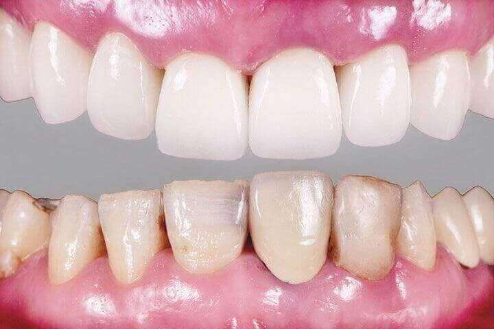 ODENT CLÍNICA DENTAL - Blanqueamiento