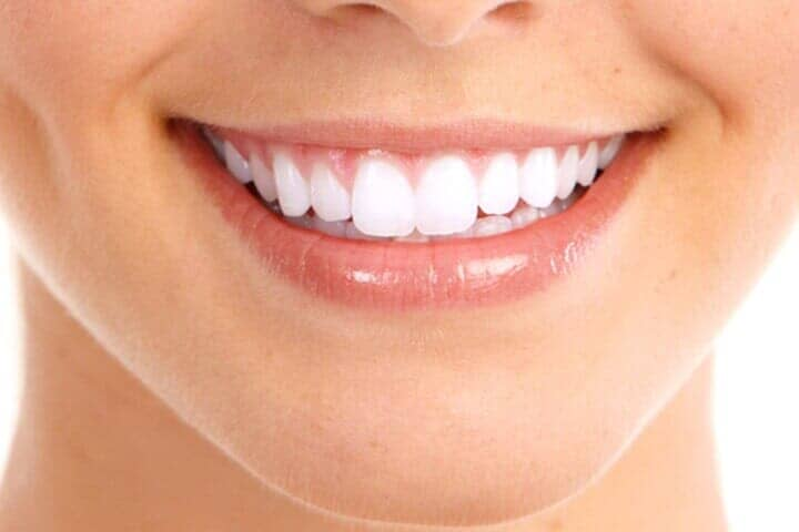 THE PERFECT SMILE DENTAL LASER CLINIC-blanqueamiento dental láser