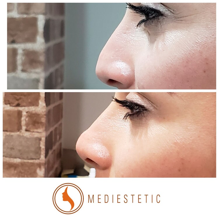 MEDIESTETIC - RELLENO BIOCOMPATIBLE