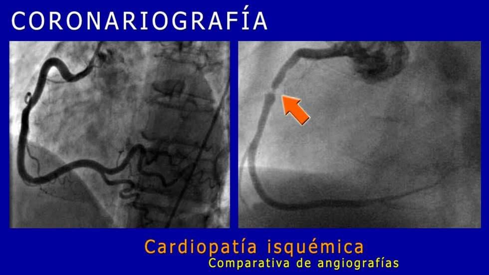 DR MIGUEL ANTONIO GUERRA CONTRERAS - Cardiopatía