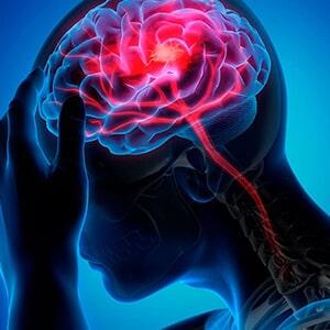 presión intracraneal - Dolor de cabeza