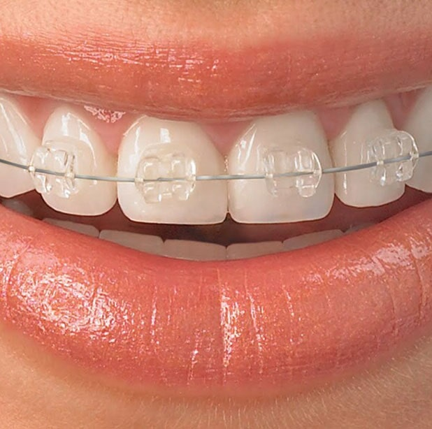 DENTAL ADAME – BRACKETS