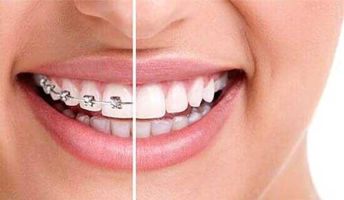 DR. ISMAEL AMOS GANDARILLAS MARTINEZ - Blanqueamiento dental