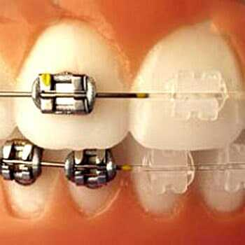 DR. ARTURO JOSÉ ISLAS MÁRQUEZ - Estética dental