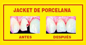 CLÍNICA DENTAL DR. ALFONSO HACES CASO - jacket de porcelana
