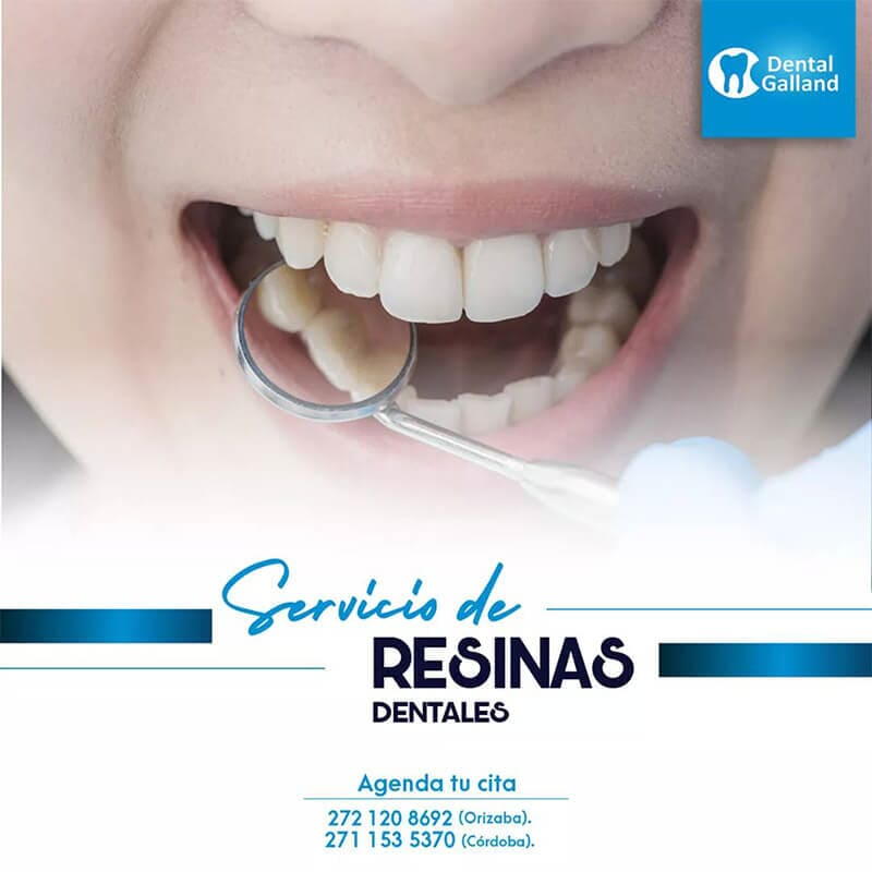 CLÍNICA DENTAL GALLAND ORIZABA - RESINAS