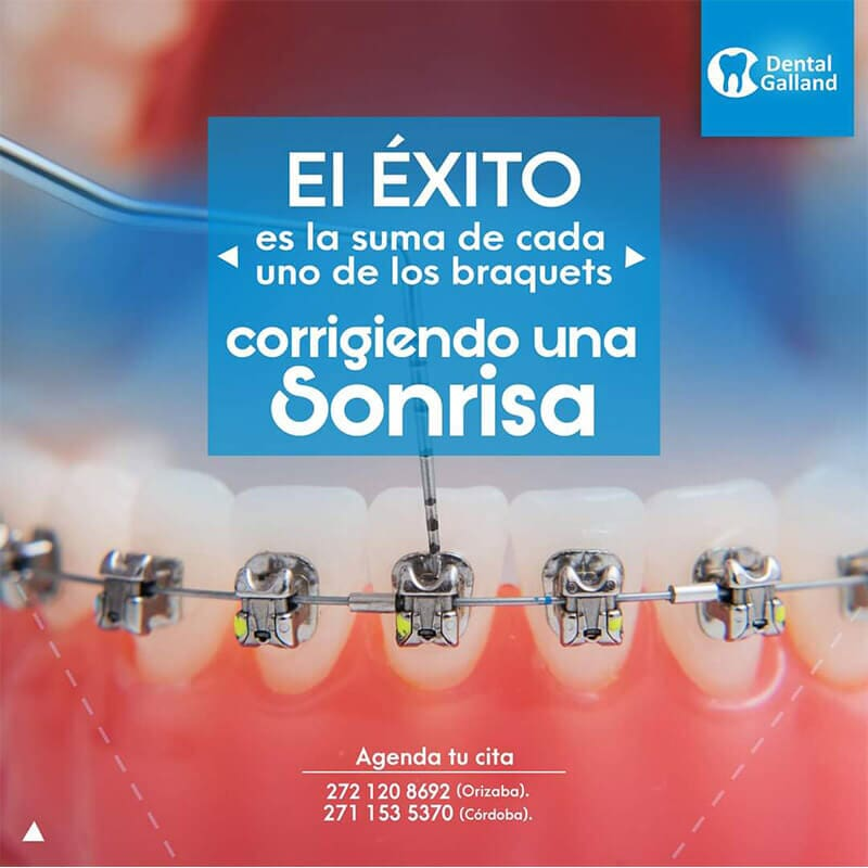 CLÍNICA DENTAL GALLAND ORIZABA - PUENTES DENTALES