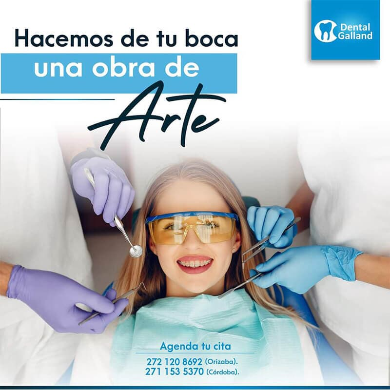 CLÍNICA DENTAL GALLAND ORIZABA - DENTISTA PARA NIÑOS