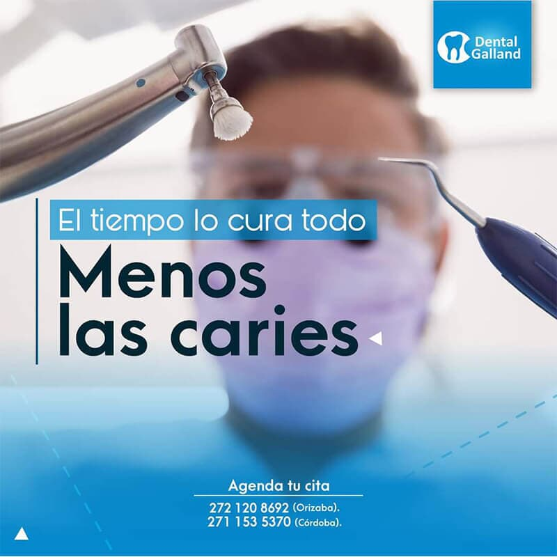 CLÍNICA DENTAL GALLAND ORIZABA - LIMPIEZA DENTAL