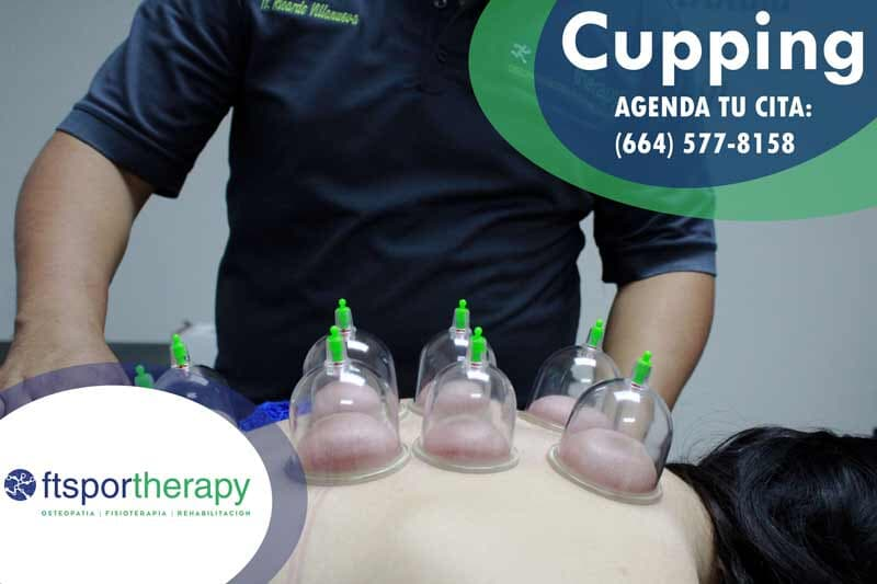 FT SPORTHERAPY -  Cupping