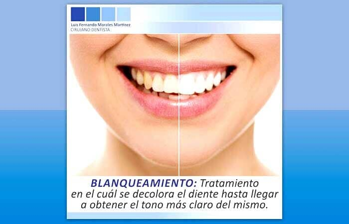 BIODENT DENTAL CENTER-blanqueamiento