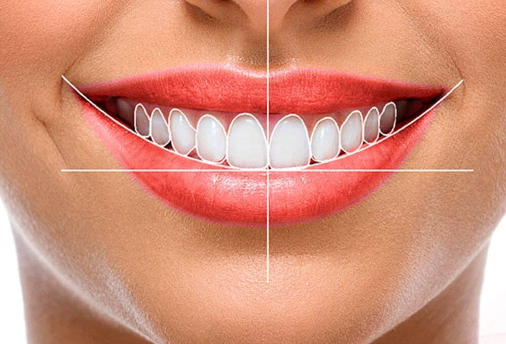 BIODENT DENTAL CENTER-estética dental