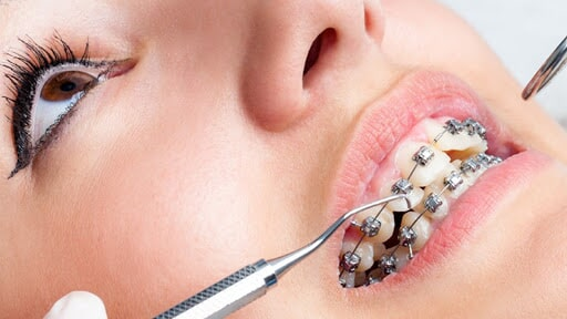 BIODENT DENTAL CENTER- ortodoncia