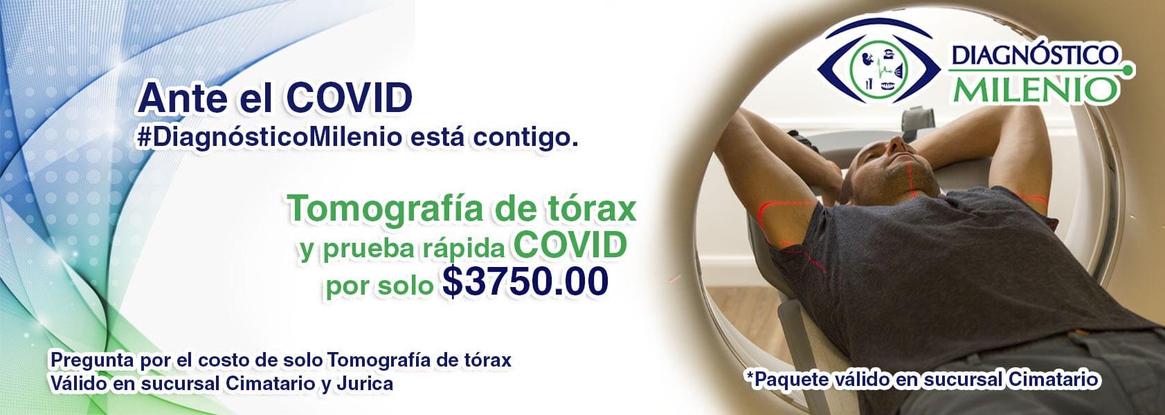 DIAGNÓSTICO MILENIO –tomografía de tórax